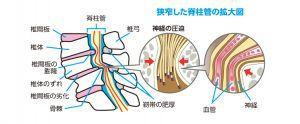 脊柱管の拡大図